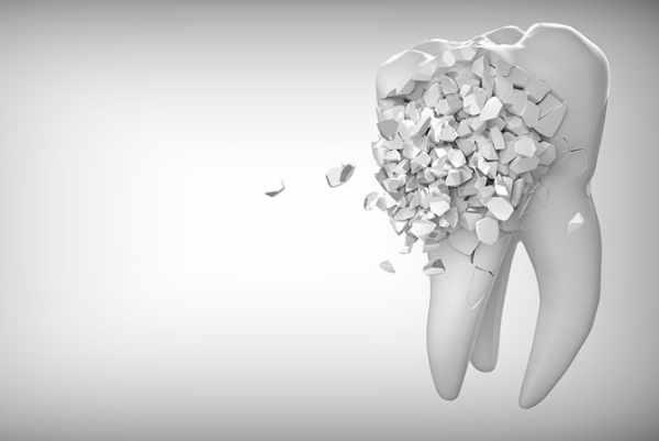 Si la dentina está expuesta a los agentes externos empieza la sintomatología de diente sensible