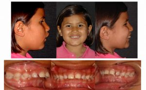 ortodoncial funcional