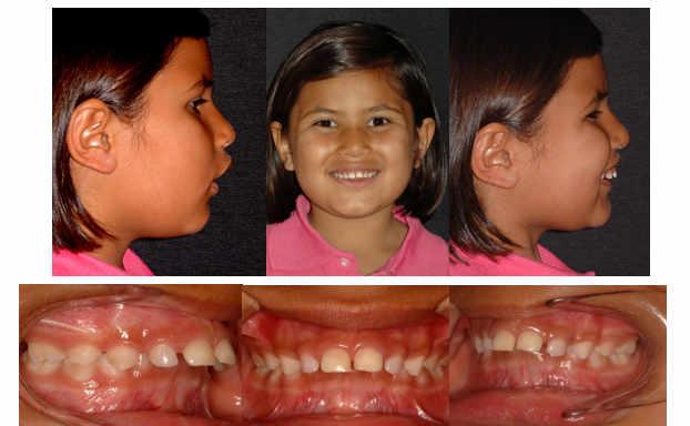 Paciente con un mayor crecimiento del maxilar que de la mandíbula y se le pone un aparato functional u ortodoncial funcioanl