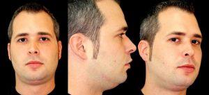 Paciente con una apnea de sueños grave. Tanto su cara como sus oclusión dental están equilibrados. Tras la cirugía tanto la estética facial y oclusión permaneces equilibrada pero hay un espectacular aumento de la Vía Aérea tratado en Arquifacial