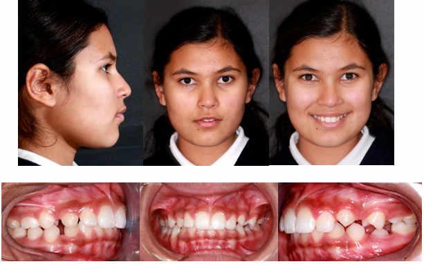 La misma paciente varios años después en la que se constata el avance mandibular que se ha mantenido estable gracias a la ortodoncia funcional realizada