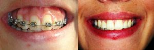 SIN cirugía, solo con microtornillos dentales o apoyos óseos junto a ortodoncia multibrackets, se ha conseguido una mejor relación labio/diente. La paciente tenía una sonrisa que mostraba excesivamente la encía, que hemos corregido.