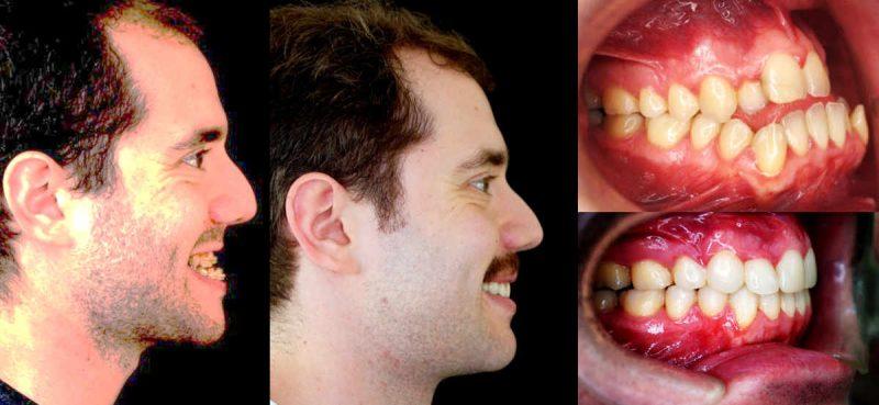 CASO CLÍNICO 2 de Apnea del Sueño. Paciente acude a la consulta para corregir sus dientes con cirugía ortognática . Diagnosticamos apnea del sueño