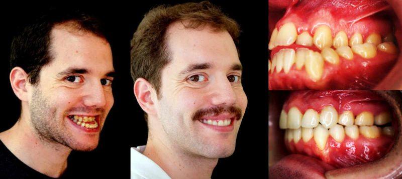 Como se observa tiene una simetría en su cara y un exceso de crecimiento en la mandíbula que produce apnea del sueño
