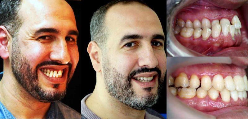 Paciente derivado a esta consulta para cirugía Ortognática y gracias a los microtornillos dentales se ha podido tratar sin cirugía.