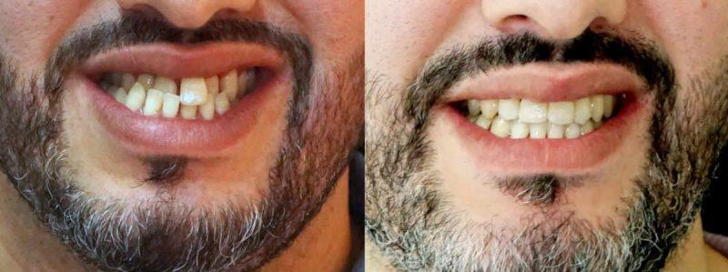 Los microtornillos o apoyos óseos, colocados temporalmente en el hueso, sirven para ser utilizados como unidades de anclaje, no móviles, que facilitan el movimiento de los dientes. y evitan fuerzas de reacción.