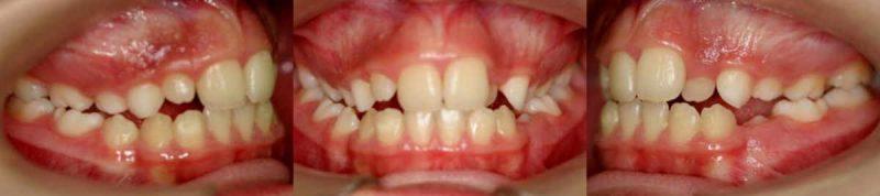 CASO CLÍNICO 4 de Apoyos Óseos o Microtornillos. Corregido solo con ortodoncia y microtornillos dentales.