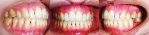 Apoyos Óseos o Microtornillos. Paciente con un gran apiñamiento en la cual se acorto el tiempo de su tratamiento con los microtornillos dentales y además pudimos enderezas los molares volcados y cerrar el espacio ahorrado un implante.