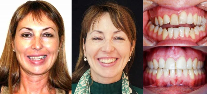 CASO CLÍNICO 6 de Apoyos Óseos o Microtornillos. Paciente con una grave maloclusión llamada mordida abierta. Tradicionalmente, la única opción era la cirugía ortognática. En este cas,o ha sido tratada solo con ortodoncia y microtornillos dentales y sin extracciones de premolares.