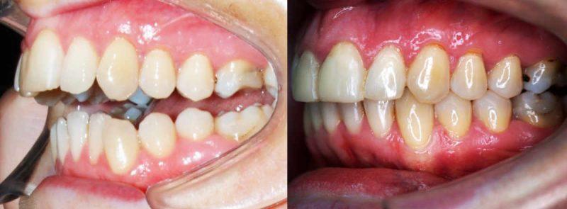 Apoyos Óseos o Microtornillos. Paciente con una grave maloclusión llamada mordida abierta. Tradicionalmente, la única opción era la cirugía ortognática. En este cas,o ha sido tratada solo con ortodoncia y microtornillos dentales y sin extracciones de premolares.