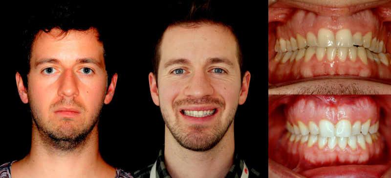 Paciente con cara adenoide que nos indica que ha sido un respirador bucal toda su vida y que ahora, como adulto, tiene apnea