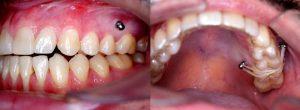 Imágenes de microtornillos dentales o apoyos óseos en boca.