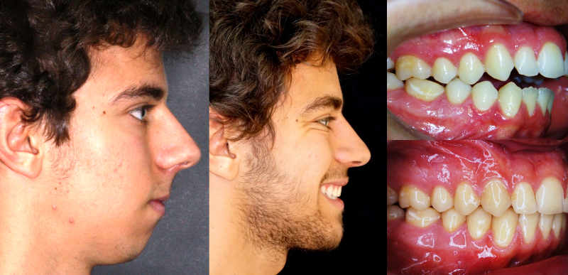 tratamiento con cirugía ortognática en Arquifacial, centro odontológico