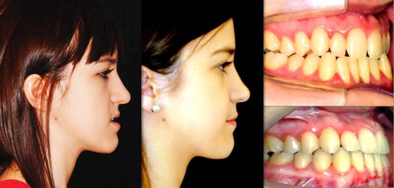 tratamiento con cirugía ortognática