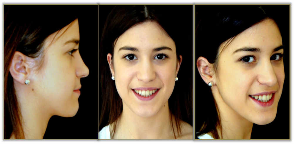caso-clínico-6-de-cirugía-ortognática