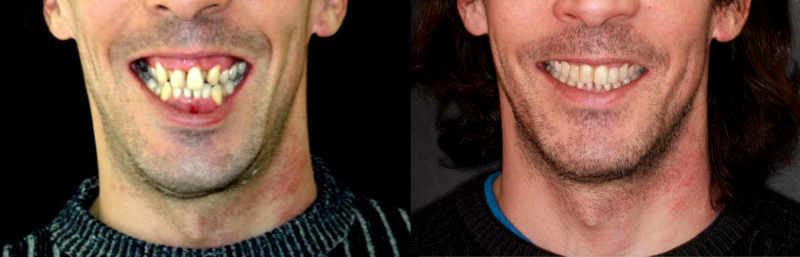 Maloclusión dental ¿Cuándo hay que hacer cirugía ortognática?
