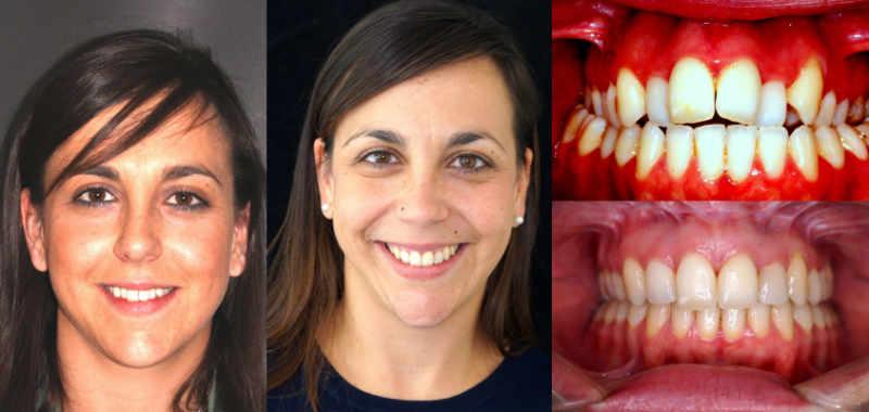 centro odontología avanzada cirugía ortognática tratamiento en el centro odontológico arquifacial