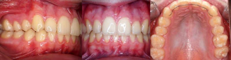 ortodoncia funcional tratamiento en arquifacial centro de odontología